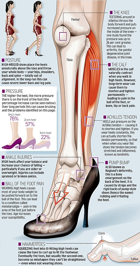 High Heels and Pain – How to Prevent it? – NST Health